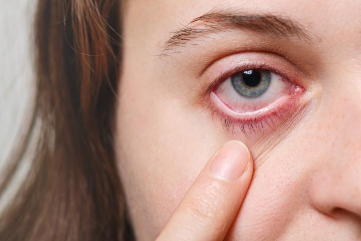 Mata Merah pada Balita, Ini Penyebab dan Cara Mengatasinya