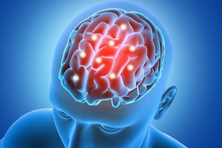 Mengenal Pendarahan Otak, Kondisi yang Dialami Tukul Arwana